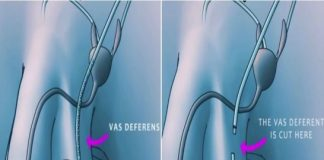 Vasectomy Before and After Surgical Procedure