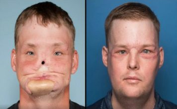 andy sandness before after face transplant