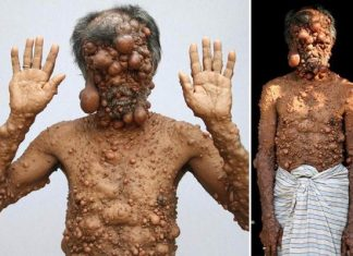 bangladeshi man covered tumours