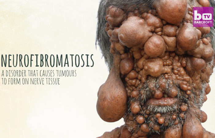 neurofibromatosis on bangladeshi man