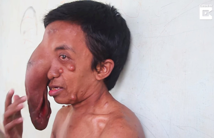 trunk like tumour on face