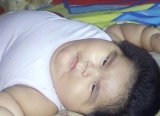 luis manuel mexican worlds fattest baby